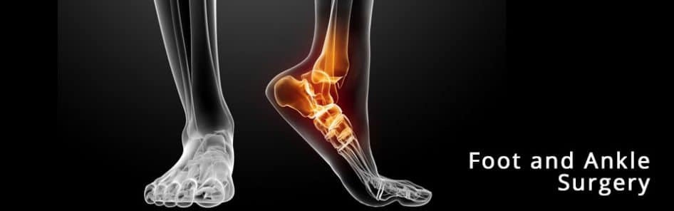 Foot Amp Ankle Surgery Laser Podiatry Associates